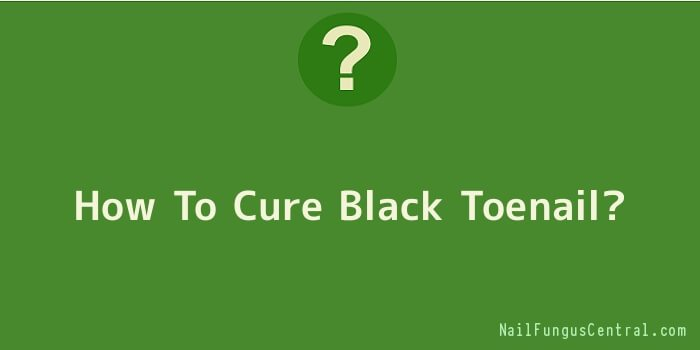 How To Cure Black Toenail