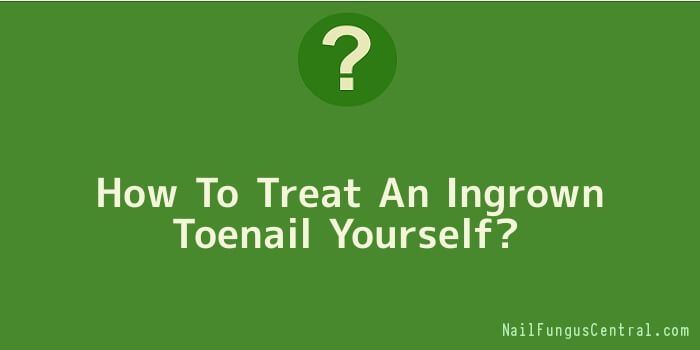 How To Treat An Ingrown Toenail Yourself