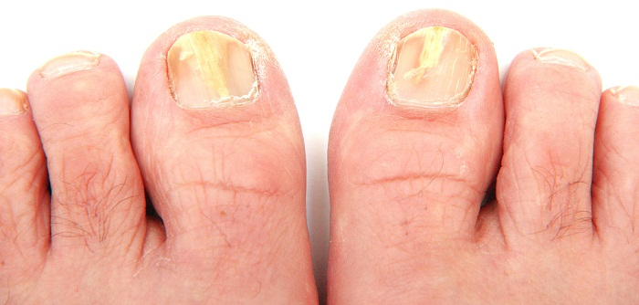 Treatment For Fungal Nail Infection