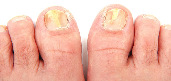 Nail Fungus Treatment Selections