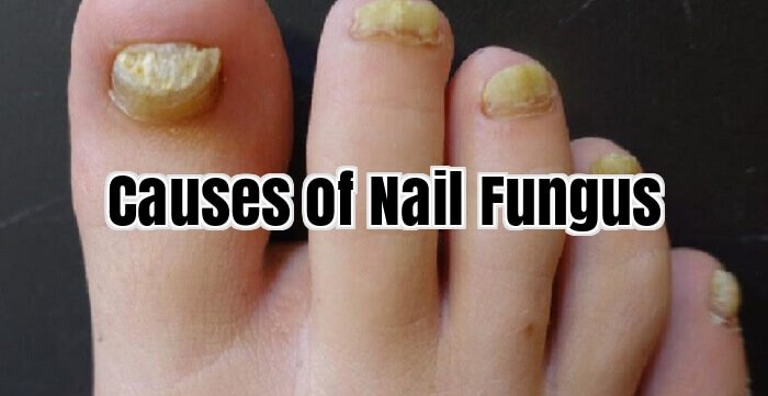 Causes of Nail Fungus
