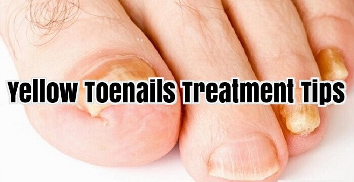 Yellow Toenails Treatment Tips